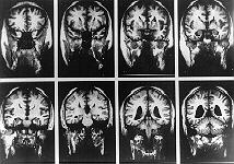 the deinstitutionalization of chronic mental patients and the characteristics of schizophrenia